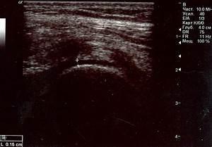 Процедуры от псориаза в карловых варах