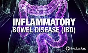 Thc May Help To Reduce Damage In Patients With Ibd