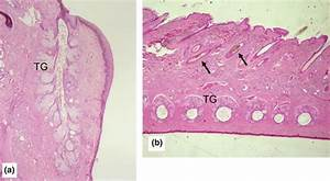 Histological Aspect Of Tarsal Glands  Tg  In A Control