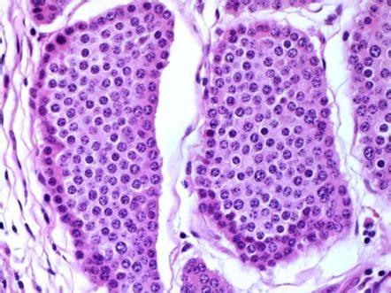 terminal ileum carcinoid  differentiated