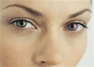 Yeux Verts Rares : les yeux vairons adn acide d soxyribonucl ique ~ Nature-et-papiers.com Idées de Décoration