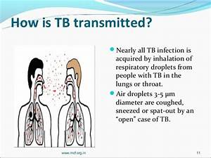 Training on tuberculosis for counselors 2012