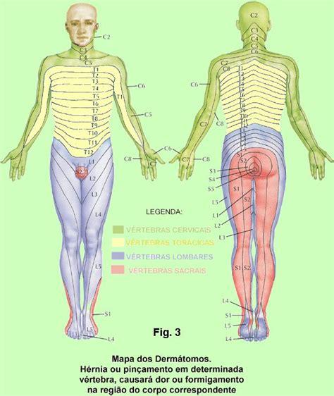 Hernia lombar sintomas
