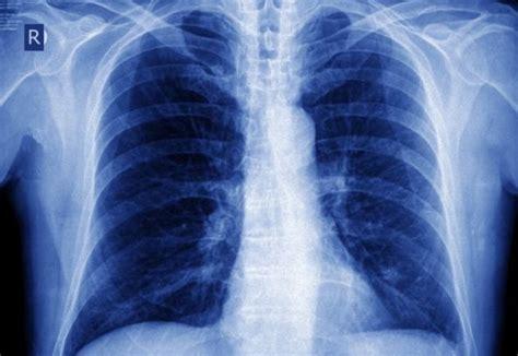 tumore polmoni  metastasi cerebrali medicinalive