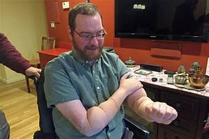 2 Years After Double Arm Transplant  Boston Man Is