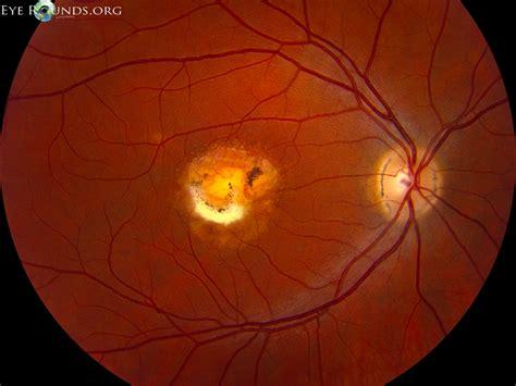 north carolina macular dystrophy  university  iowa