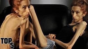 Top 5 Skinniest People In The World - YouTube
