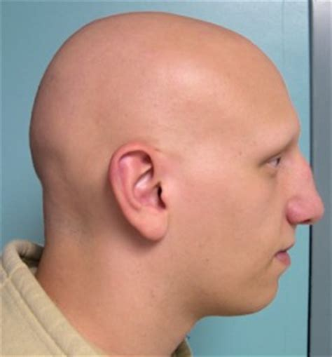 Alopecia areata description