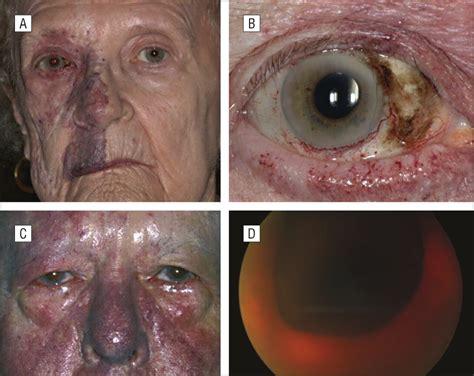 phacomatosis pigmentovascularis  cesioflammea type   patients combination  ocular