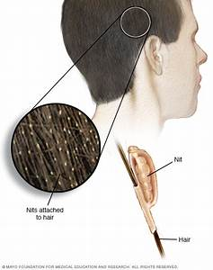 Head Lice Symptoms And Causes Mayo Clinic