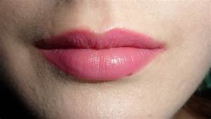 what causes small bumps on lips