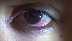 Hiv Affected   Eye Details