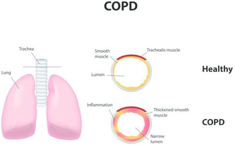 Pictures of Lungs with COPD Emphysema