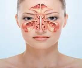 cancer  maxillary sinusparanasal sinuses symptoms diagnosis treatment prevention
