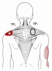1151 Best Myofascial    Triggers Points Images On Pinterest