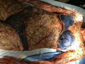 Code Black Burned Body Prosthetics – Vincent Van Dyke Effects