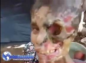 Krokodil Drugs Before and After