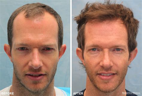 Hair Transplant Patient GKL Before After | Bernstein Medical