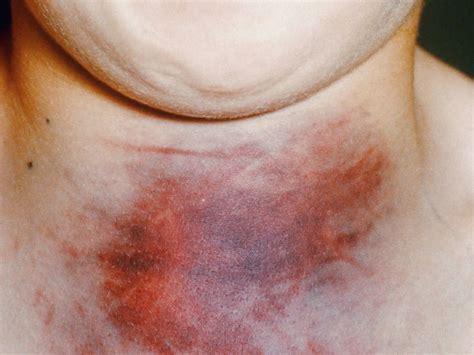 First Long-Acting Hemophilia B Drug (Alprolix) Clears FDA