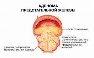 Лечение простатита г киров
