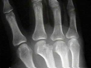 Metacarpal Fractures - Hand - Orthobullets