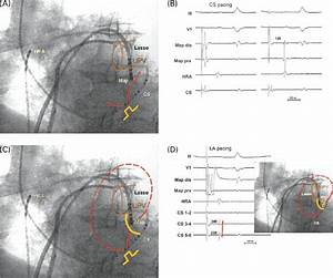 Conduction Block Of The La Isthmus  Prior To The Ablation