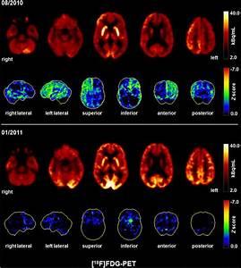 Fluorodeoxyglucose positron emission tomography (FDG-PET ...