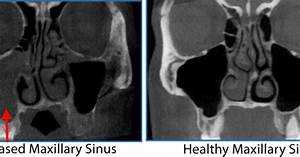 3-d Sinus Imaging