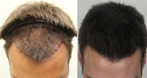 No Shedding after Hair Transplant: Will This Affect Hair