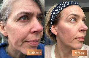 Absolute Collagen Before And After Pictures