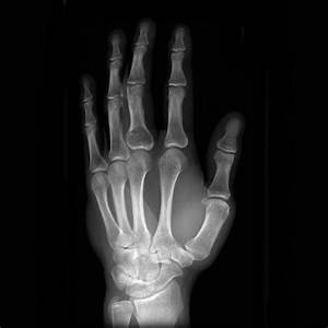 Enchondroma with pathological fracture | Image ...