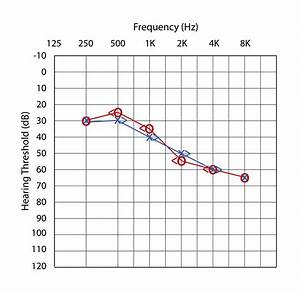 Air Conduction Vs  Bone Conduction  Candidacy Guide For
