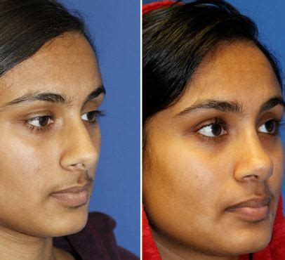 Best Rhinoplasty Surgeon  Best Rhinoplasty. How Much Do Cardiovascular Surgeons Make. Virtual Field Trips For High School Students. Moving Companies Olympia Wa Crim Law Outline. Centos Ddos Protection Dentist In La Jolla Ca. Auto Accident Settlement Video Marketing Firm. Stein Mart Credit Card Payment Online. Nursing Homes In Germantown Md. Heat Laminating Machine Tucson Az Car Dealers