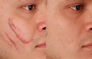 Uitgerekte huid herstellen