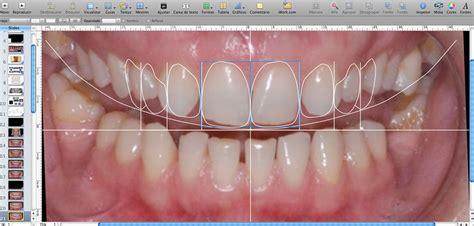 smile by design digital smile design dentistry west bowmanville dental