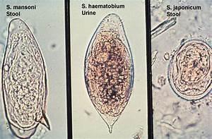Diagram Of Schistosoma Eggs