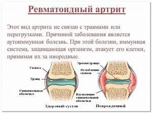 Кунжутное масло от боли в суставах