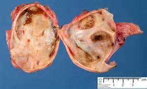 Ovarian Cyst On Ovaries