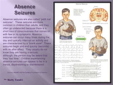 About Epilepsy  The Matty Fund. Music Schools In Denver Usd Paralegal Program. Top Marketing Automation Companies. San Diego University Golf Top Drama Colleges. Chase Travel Notification Storage Richmond Va. It Consulting Firms In Atlanta. Personal Trainer College Courses. Cleaning Up Your Credit Report. Criminology Online Degree Prestige Auto Tech