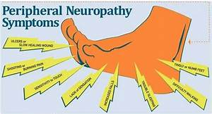What Is Peripheral Neuropathy   U2013 North Country Hospital