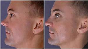 The Facts About Rhinoplasty