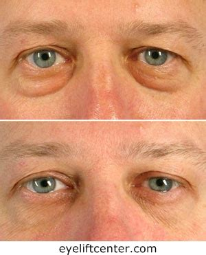 Non surgical under eye bag removal