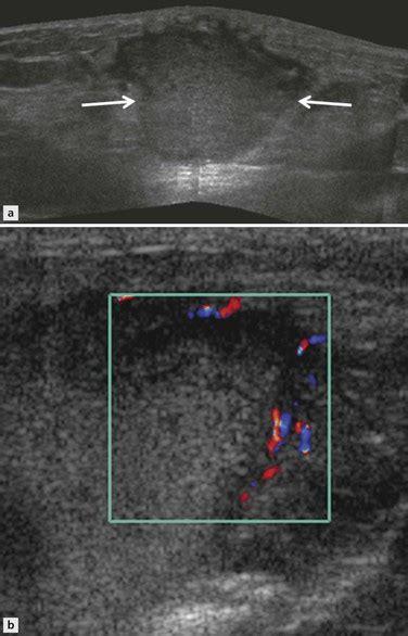 ultrasound  soft tissue masses radiology key