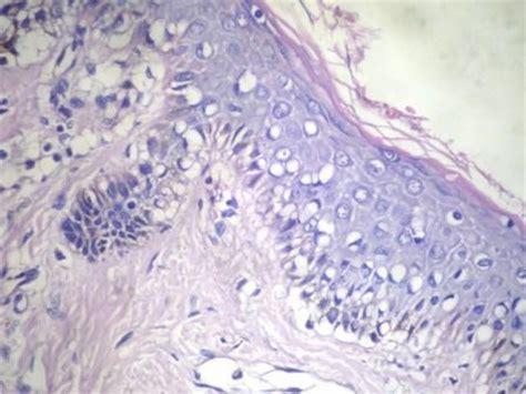 pathology outlines angiofibroma fibrous papule