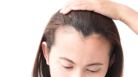Como hacer frente a la alopecia femenina. Saludalia.com