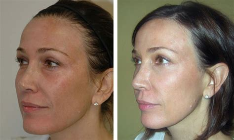 pin by aesthetic concepts on non surgical treatments laser treatment uneven skin tone