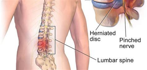 Hernie de disc, simptome si tratament nedureros pentru