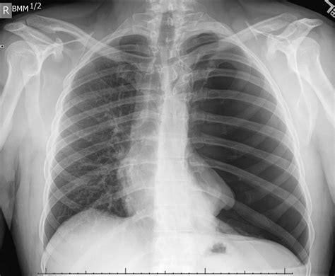 chest xray  pneumothorax
