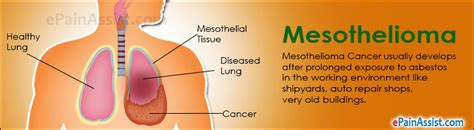 mesothelioma emerging treatment symptoms  types