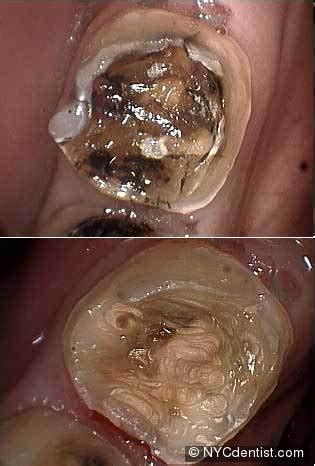 root canal infection  pain swelling  abscess